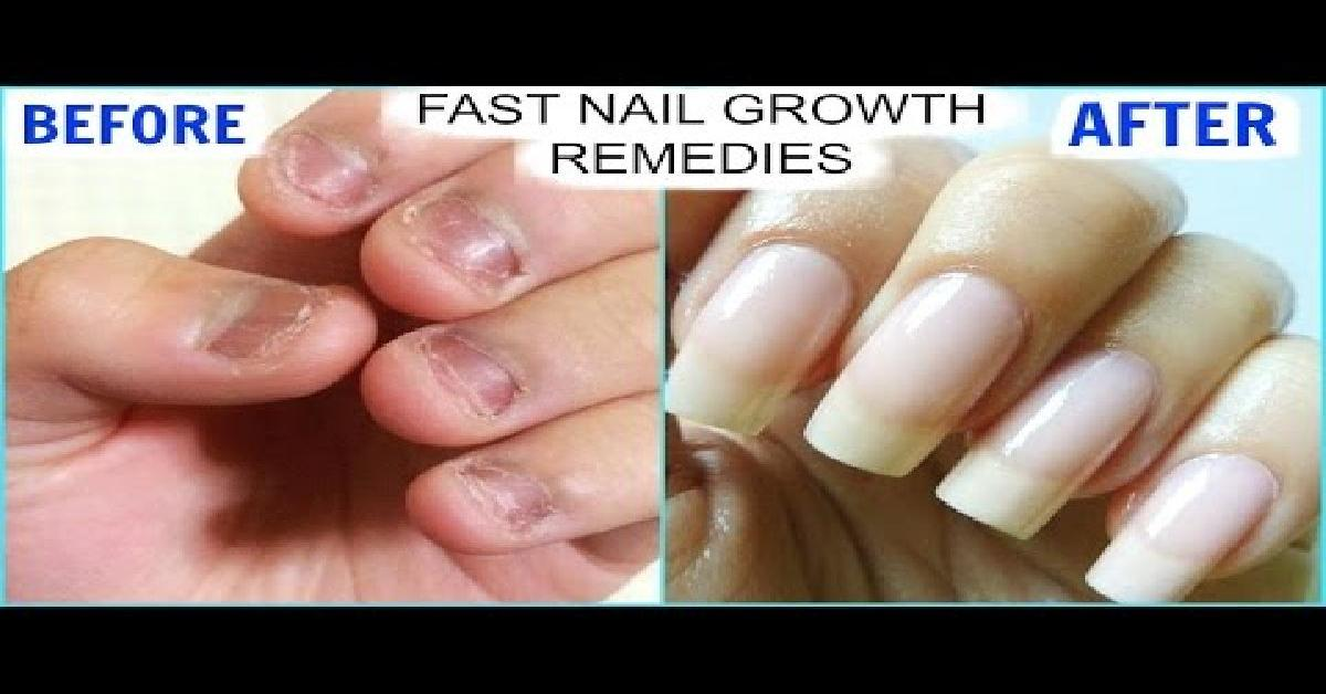 How To Grow Long Strong Nails Fast At Home